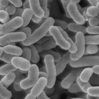 Lactobacillus_TEM