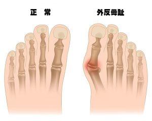 外反母趾エクササイズ